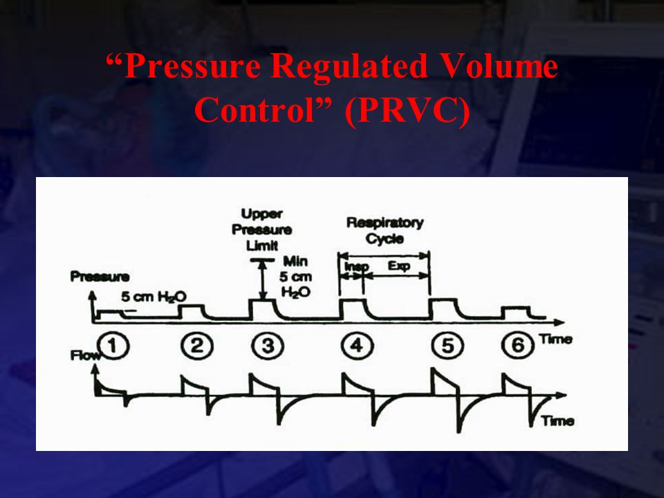 Pressure Regulated Volume Control (PRVC)