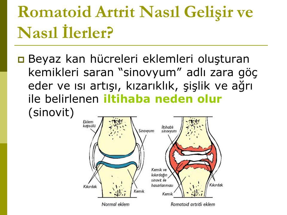 Romatoid Artrit Nasıl Gelişir ve Nasıl İlerler