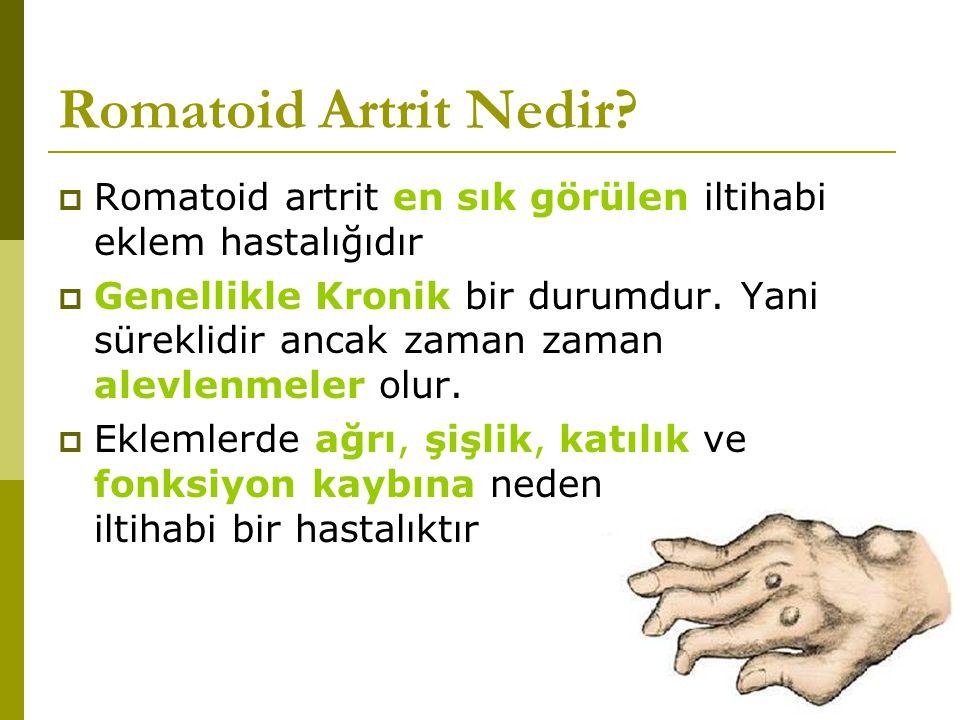 Romatoid Artrit Nedir Romatoid artrit en sık görülen iltihabi eklem hastalığıdır.