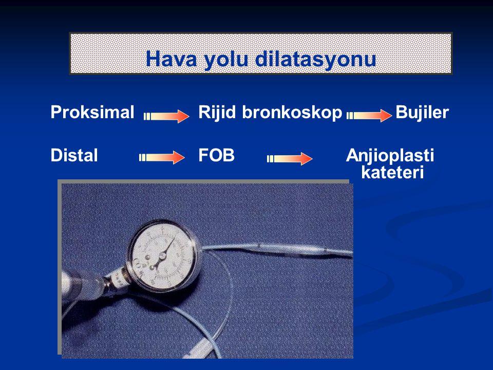 Hava yolu dilatasyonu Proksimal Rijid bronkoskop Bujiler