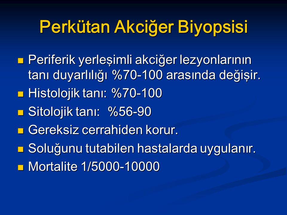 Perkütan Akciğer Biyopsisi