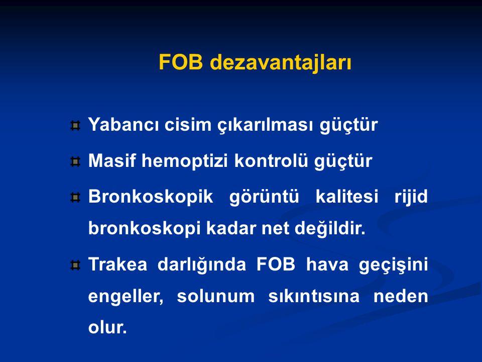 FOB dezavantajları Yabancı cisim çıkarılması güçtür