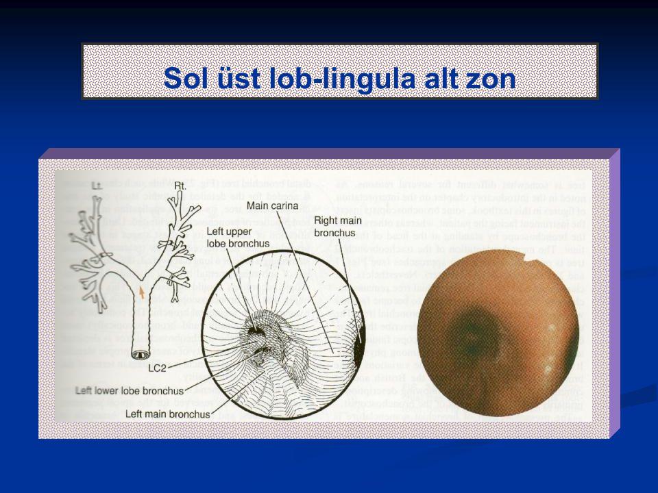 Sol üst lob-lingula alt zon