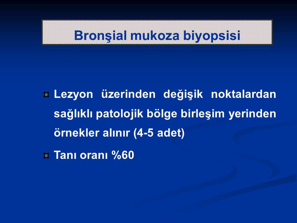 Bronşial mukoza biyopsisi
