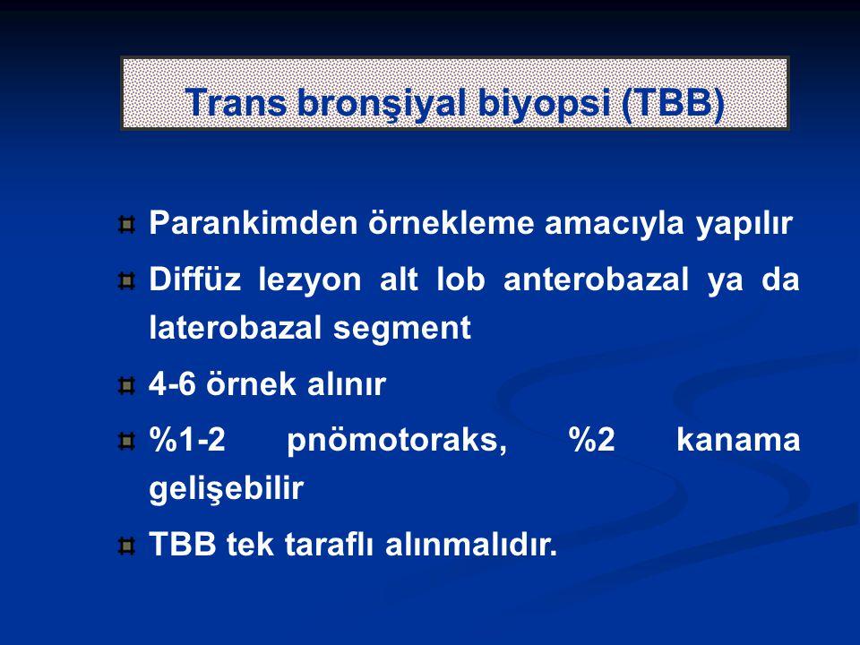 Trans bronşiyal biyopsi (TBB)