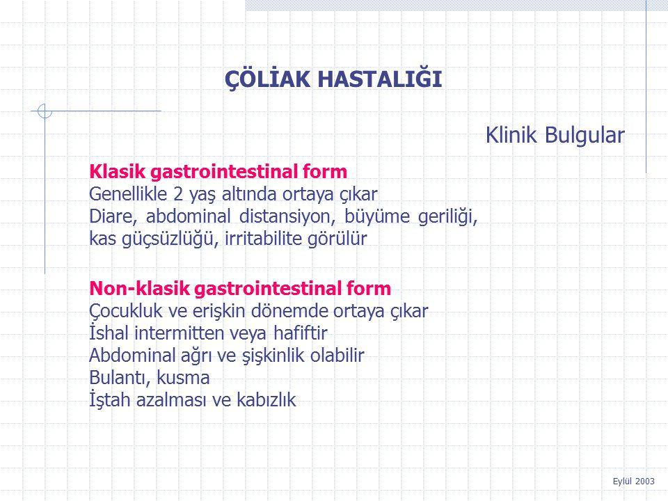 ÇÖLİAK HASTALIĞI Klinik Bulgular Klasik gastrointestinal form