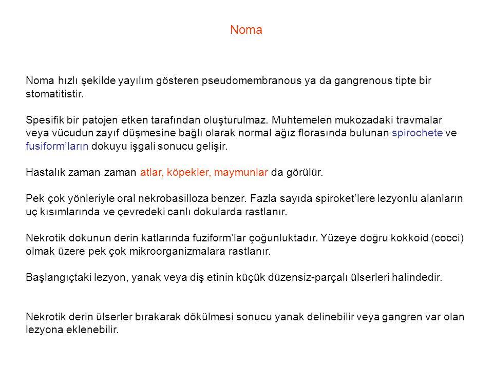 Noma Noma hızlı şekilde yayılım gösteren pseudomembranous ya da gangrenous tipte bir stomatitistir.