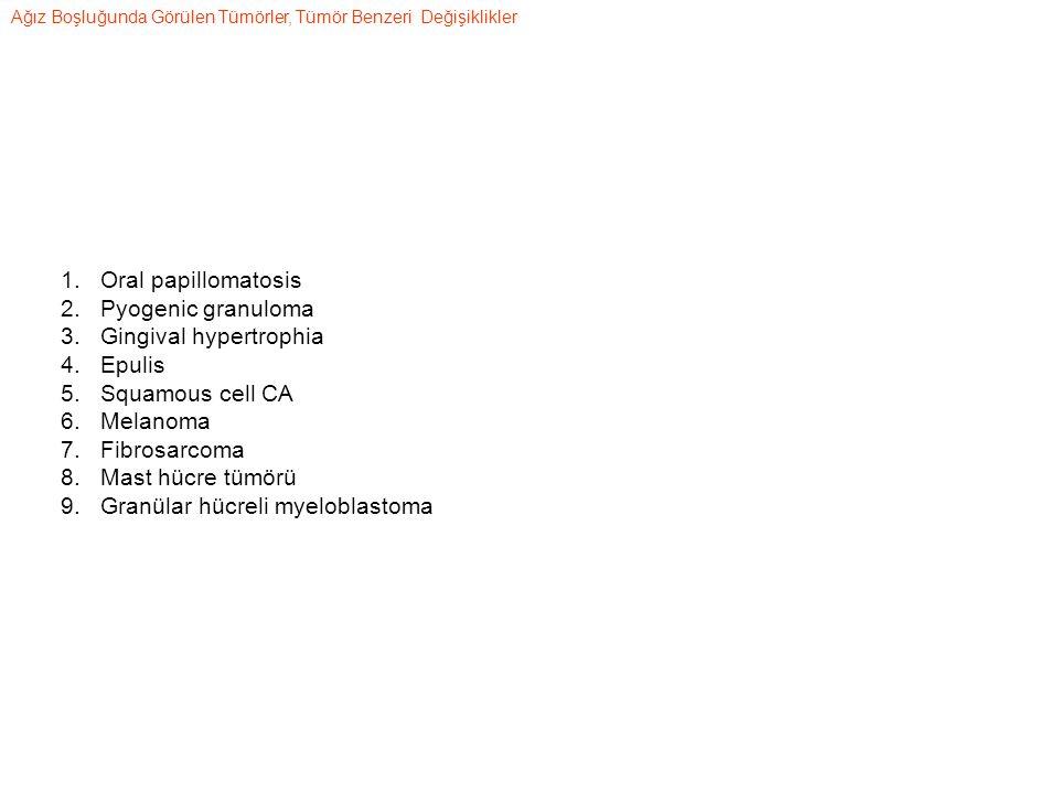 Gingival hypertrophia Epulis Squamous cell CA Melanoma Fibrosarcoma