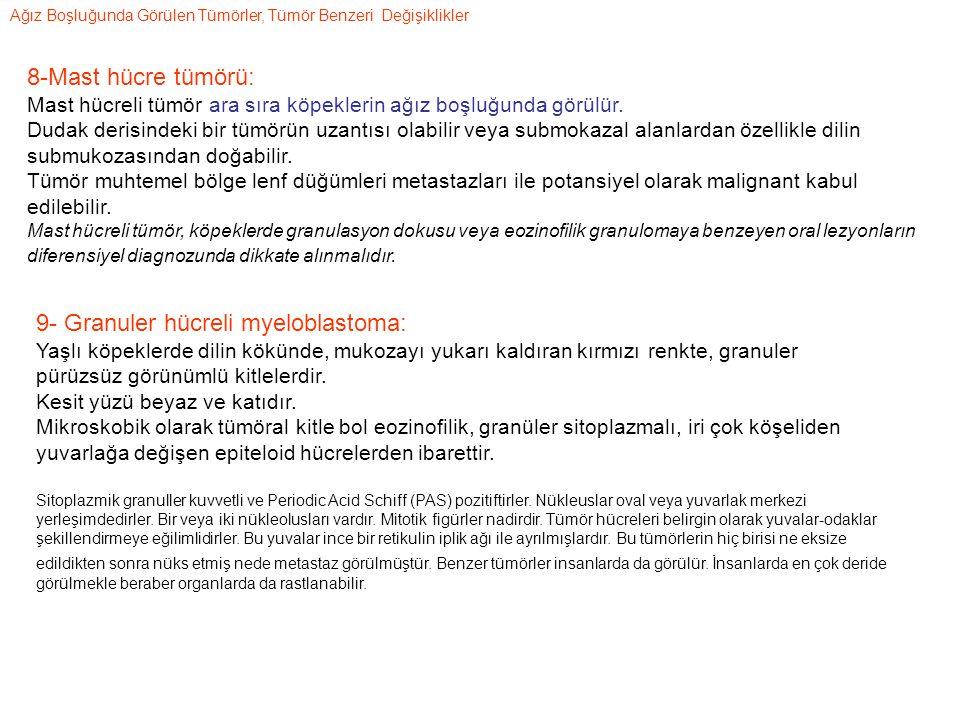 9- Granuler hücreli myeloblastoma: