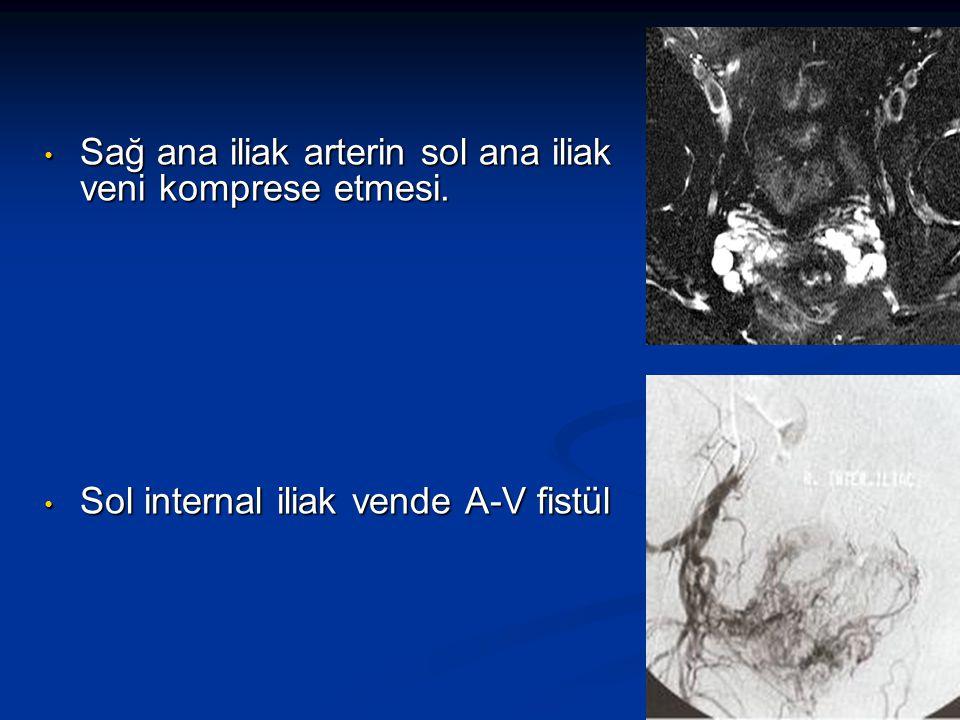 Sağ ana iliak arterin sol ana iliak veni komprese etmesi.