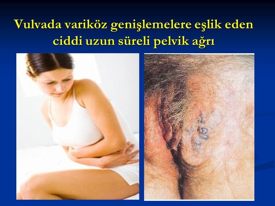 Vulvada variköz genişlemelere eşlik eden ciddi uzun süreli pelvik ağrı