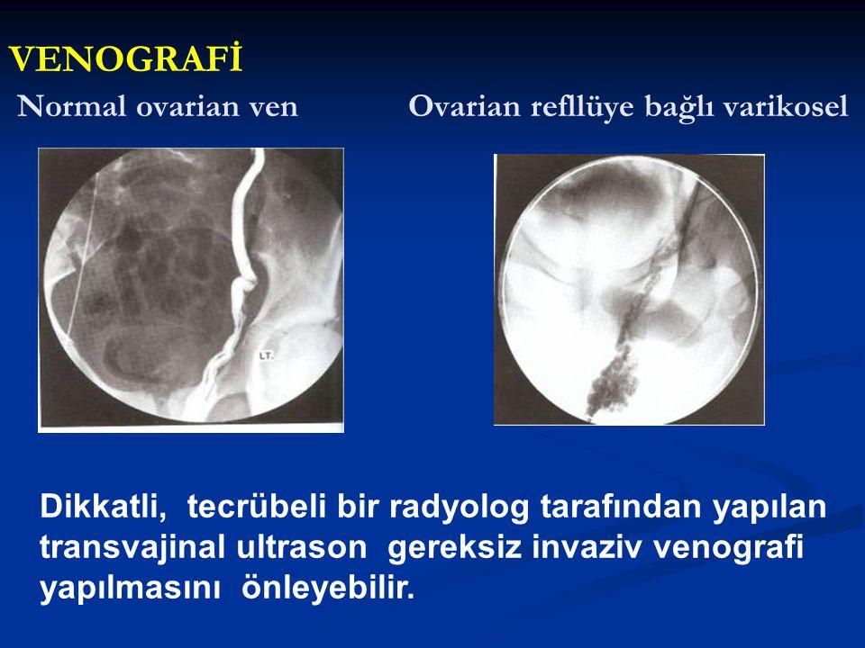Normal ovarian ven Ovarian refllüye bağlı varikosel