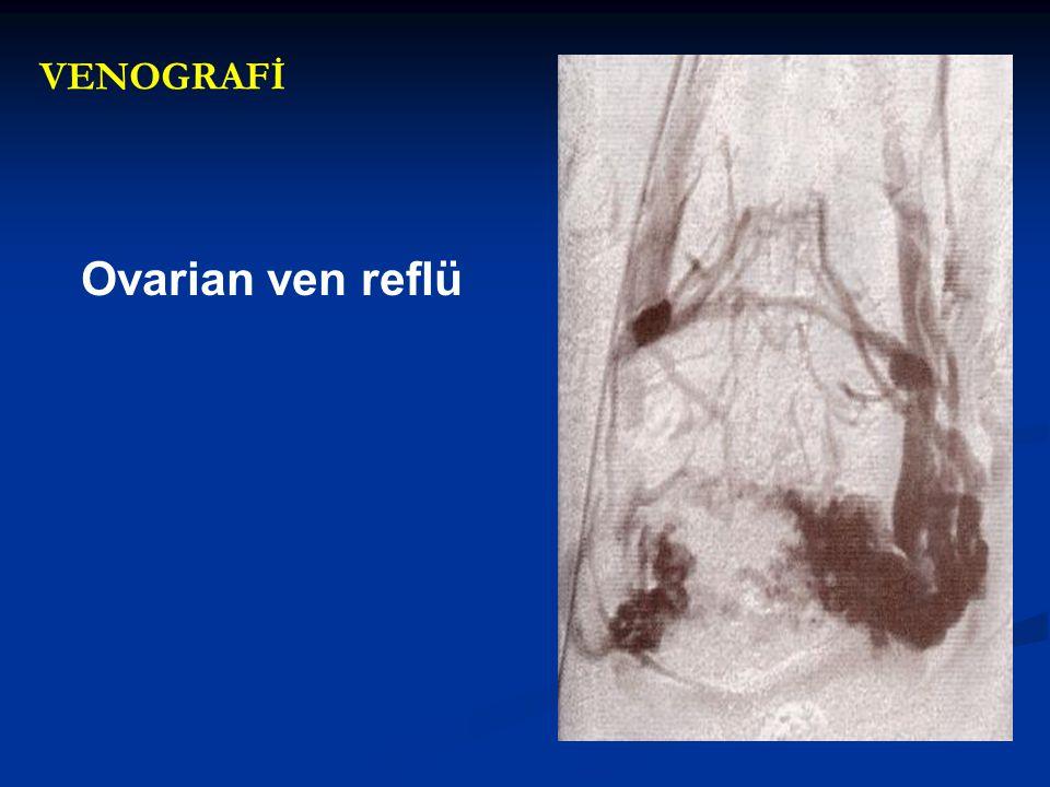 VENOGRAFİ Ovarian ven reflü