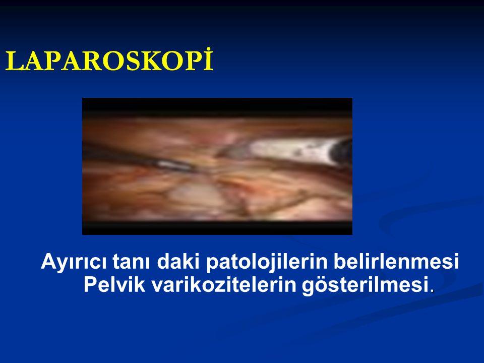 LAPAROSKOPİ Ayırıcı tanı daki patolojilerin belirlenmesi Pelvik varikozitelerin gösterilmesi.