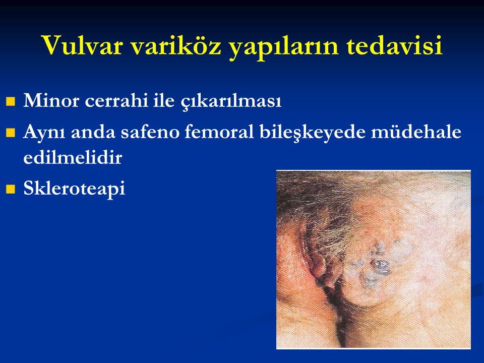 Vulvar variköz yapıların tedavisi