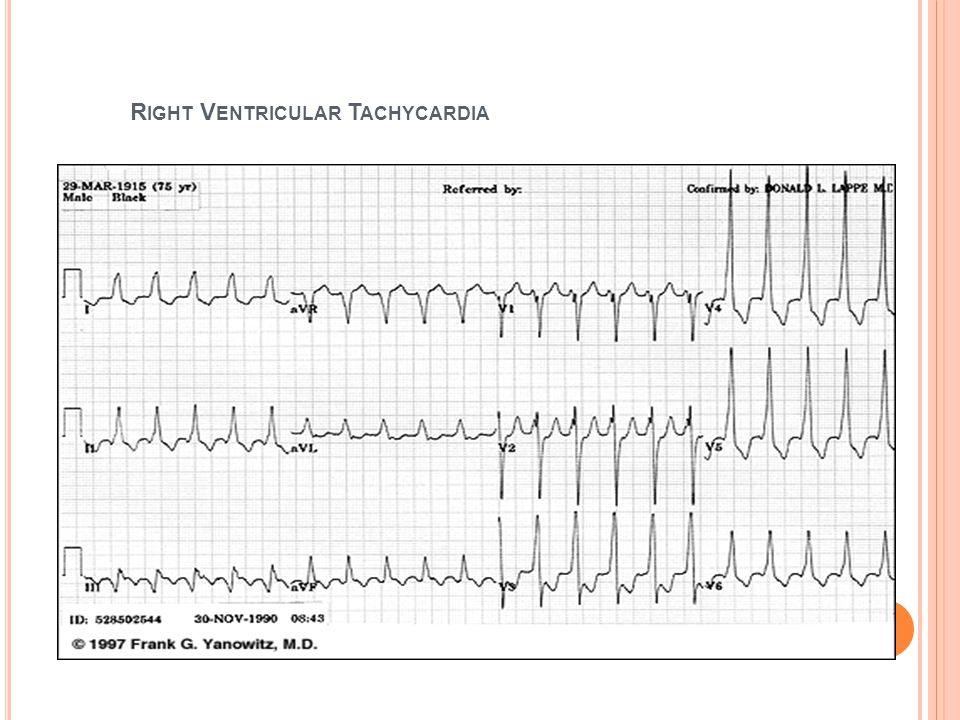 Right Ventricular Tachycardia