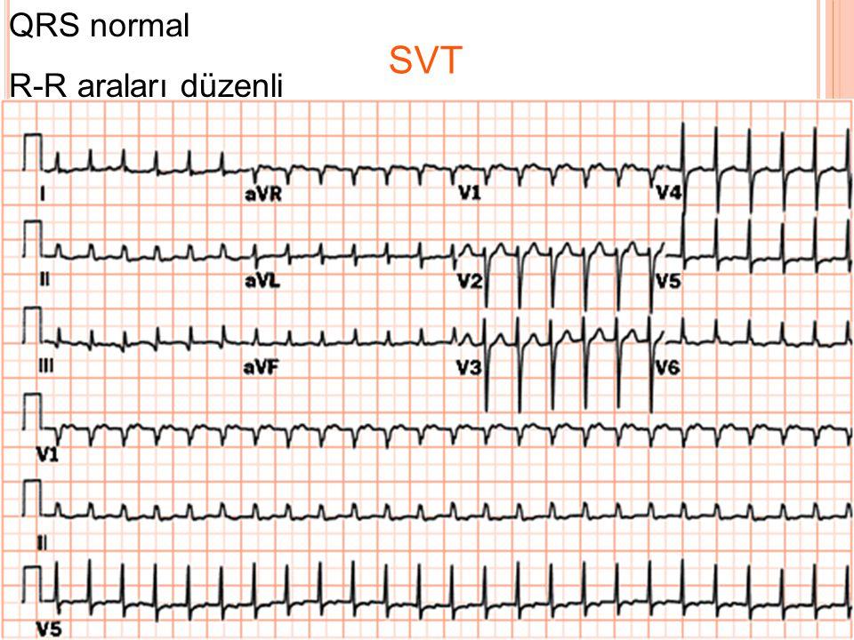 QRS normal R-R araları düzenli SVT