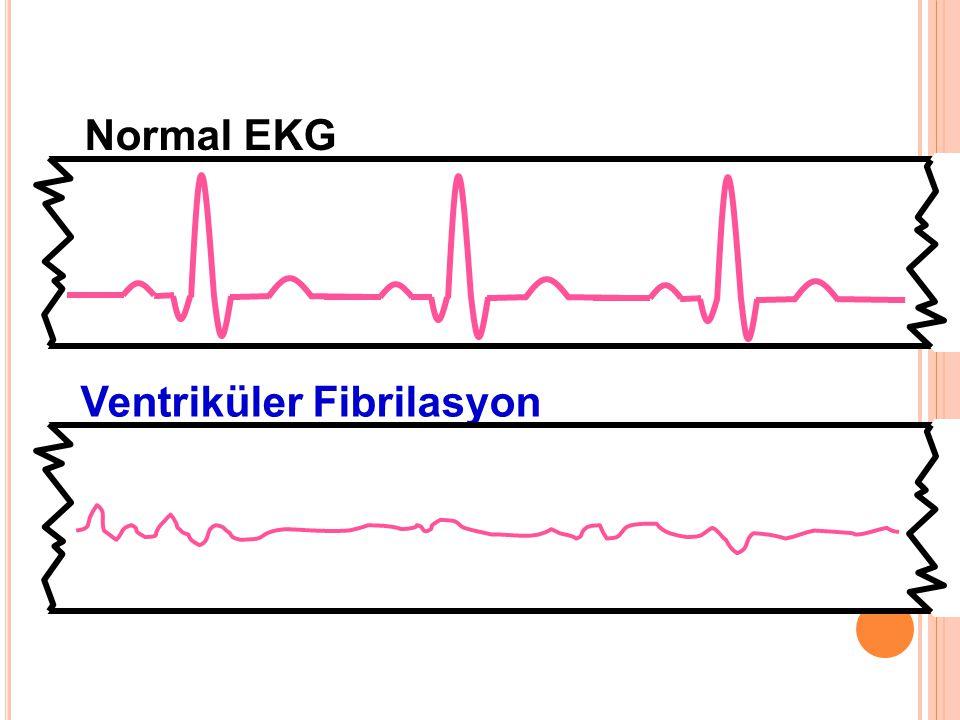 Normal EKG Ventriküler Fibrilasyon