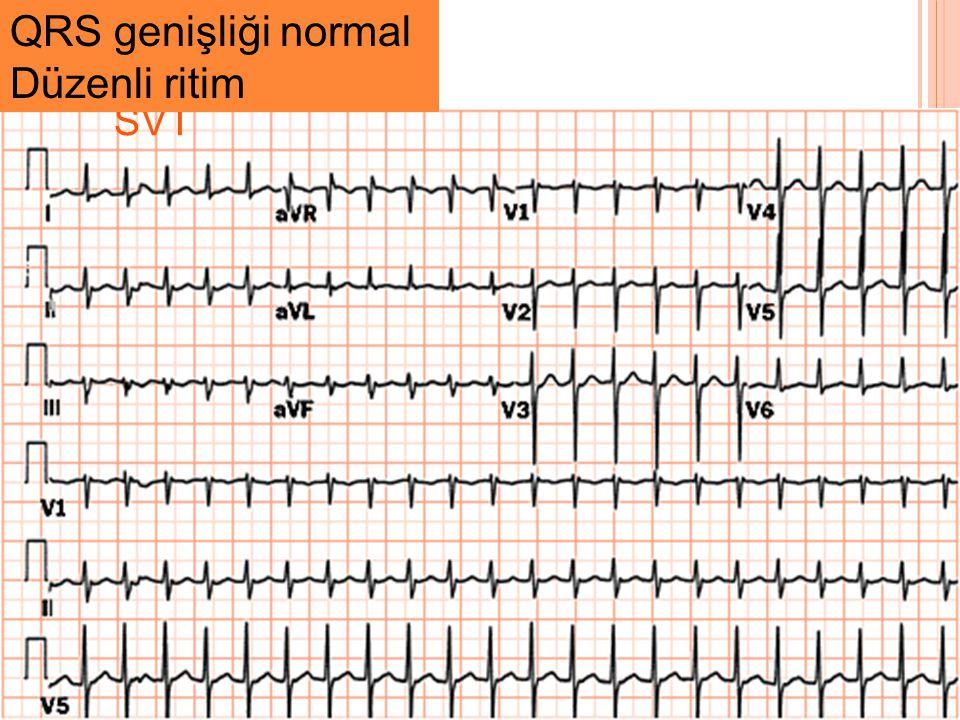 QRS genişliği normal Düzenli ritim SVT