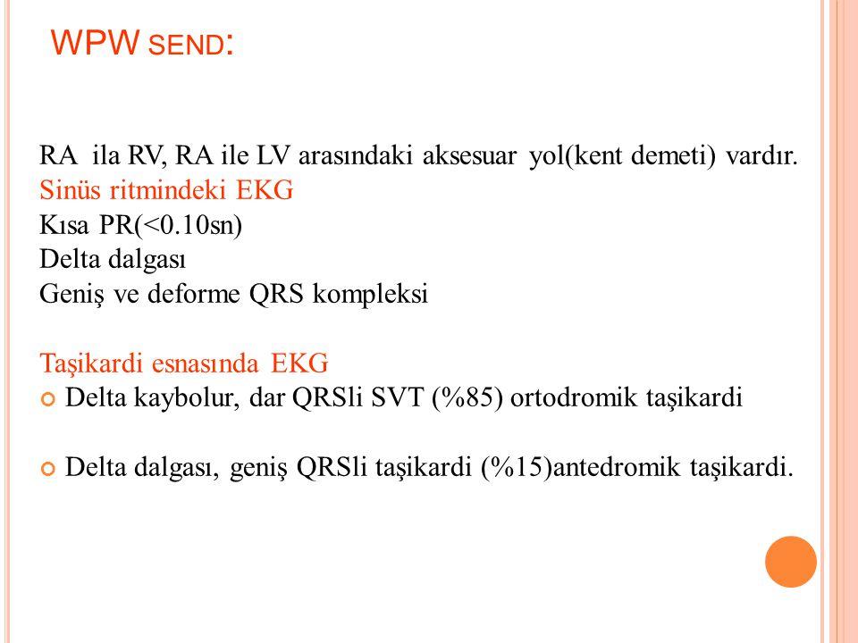 WPW send: RA ila RV, RA ile LV arasındaki aksesuar yol(kent demeti) vardır. Sinüs ritmindeki EKG.