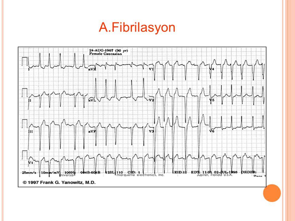 A.Fibrilasyon