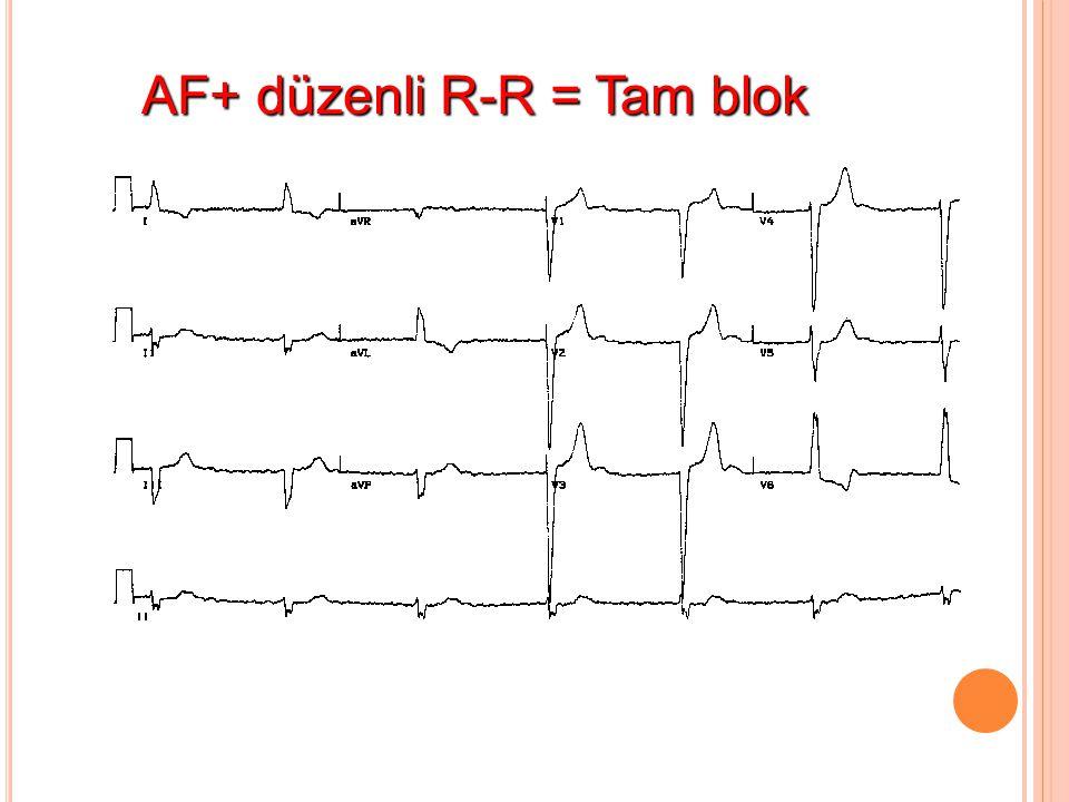 AF+ düzenli R-R = Tam blok