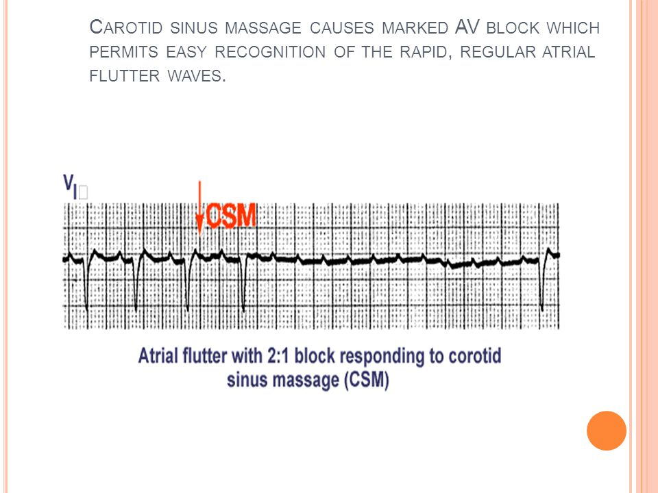 Carotid sinus massage causes marked AV block which permits easy recognition of the rapid, regular atrial flutter waves.
