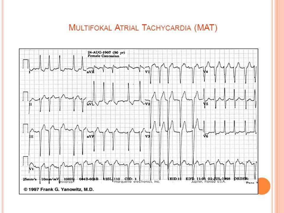 Multifokal Atrial Tachycardia (MAT)
