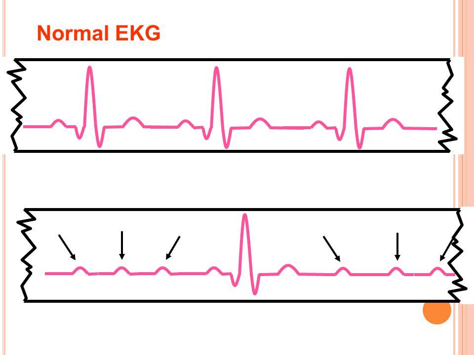 Normal EKG Atrioventricular blok