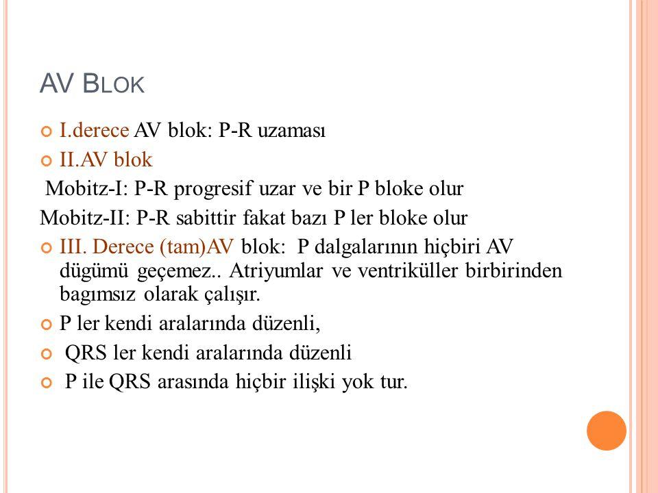 AV Blok I.derece AV blok: P-R uzaması II.AV blok