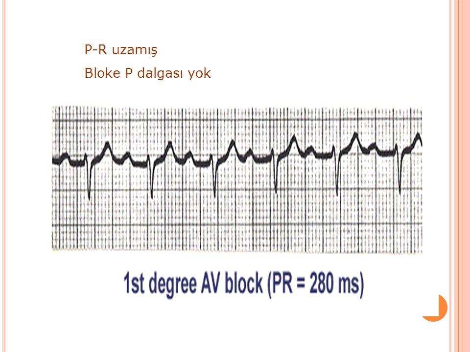 P-R uzamış Bloke P dalgası yok