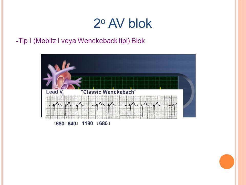 2o AV blok -Tip I (Mobitz I veya Wenckeback tipi) Blok