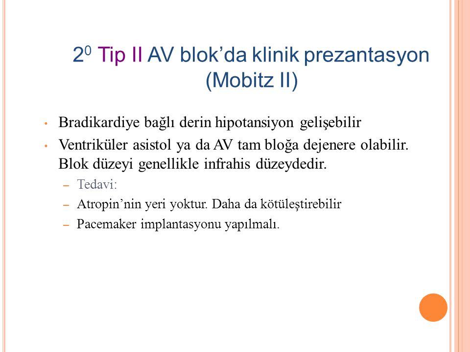 20 Tip II AV blok'da klinik prezantasyon