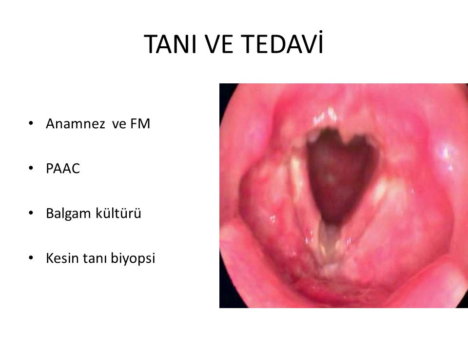 TANI VE TEDAVİ Anamnez ve FM PAAC Balgam kültürü Kesin tanı biyopsi