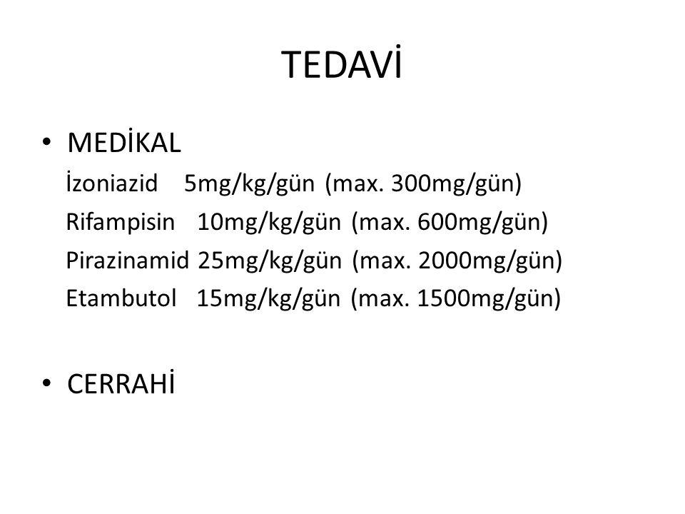 TEDAVİ MEDİKAL CERRAHİ İzoniazid 5mg/kg/gün (max. 300mg/gün)