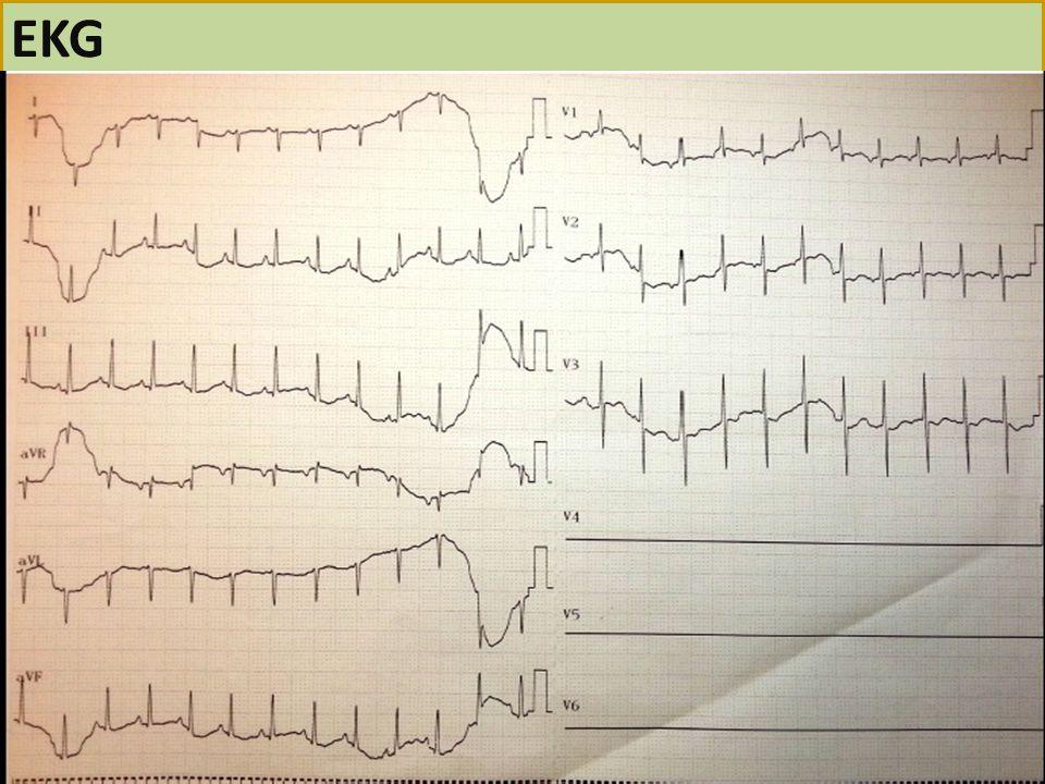 EKG 21