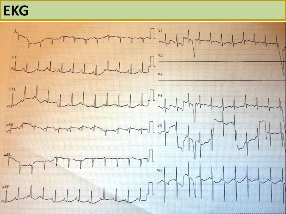 EKG 22