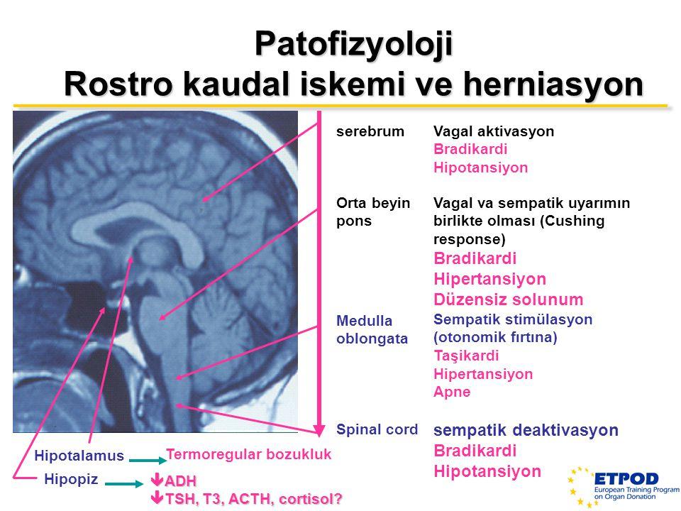 Rostro kaudal iskemi ve herniasyon
