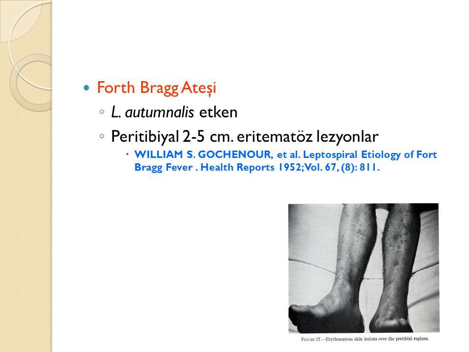 Peritibiyal 2-5 cm. eritematöz lezyonlar