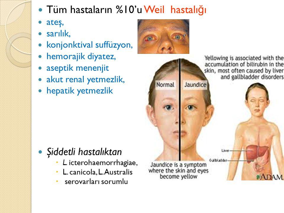 Tüm hastaların %10'u Weil hastalığı