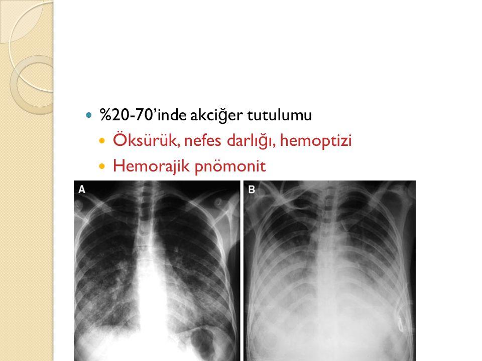 Öksürük, nefes darlığı, hemoptizi Hemorajik pnömonit -ARDS'ye kadar