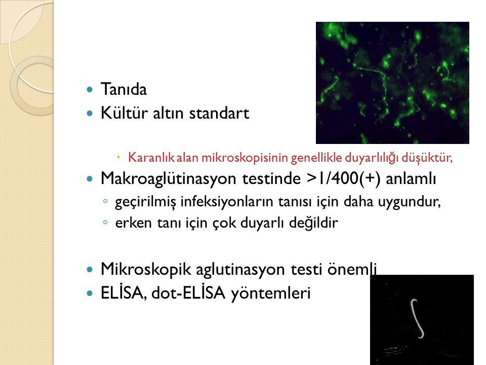 Makroaglütinasyon testinde >1/400(+) anlamlı