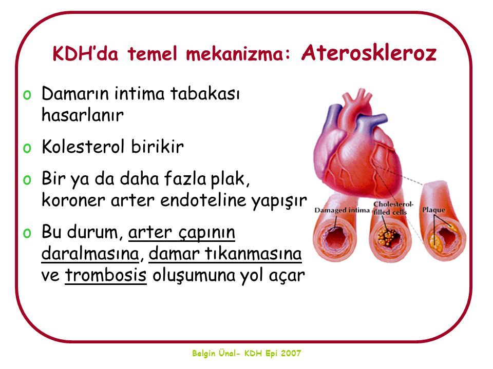 KDH'da temel mekanizma: Ateroskleroz