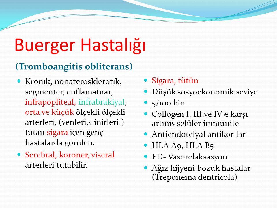Buerger Hastalığı (Tromboangitis obliterans)