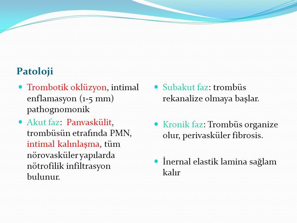 Patoloji Trombotik oklüzyon, intimal enflamasyon (1-5 mm) pathognomonik.