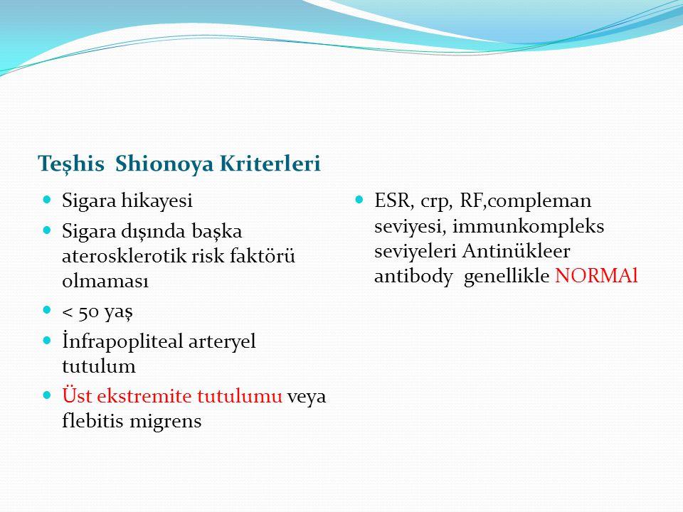 Teşhis Shionoya Kriterleri