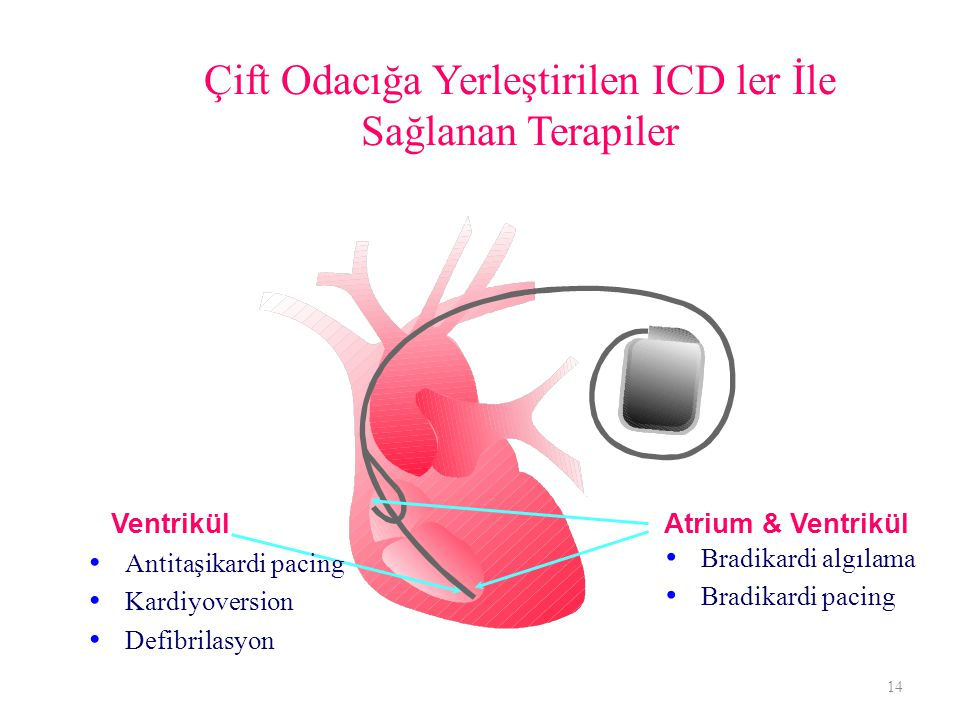 Çift Odacığa Yerleştirilen ICD ler İle Sağlanan Terapiler