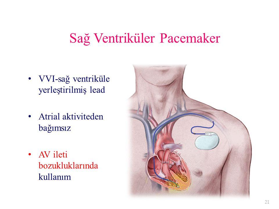 Sağ Ventriküler Pacemaker