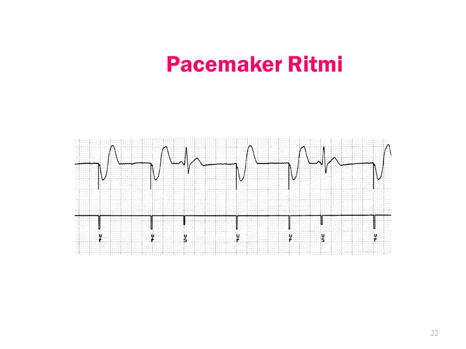 Pacemaker Ritmi