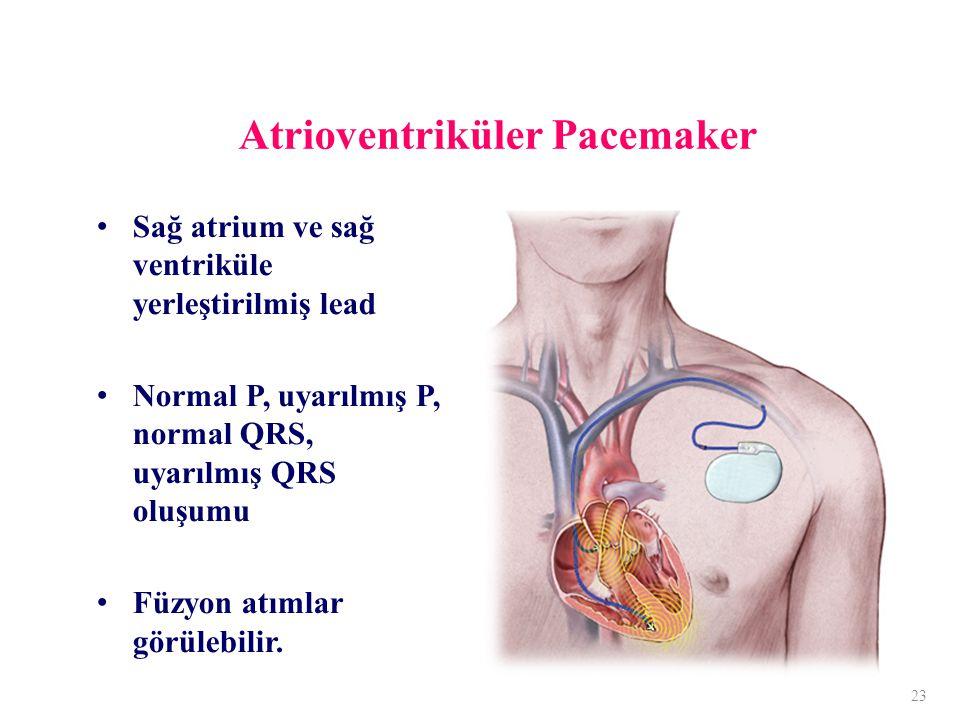 Atrioventriküler Pacemaker